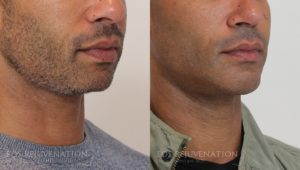 Patient 7b Chin Augmentation Before and After