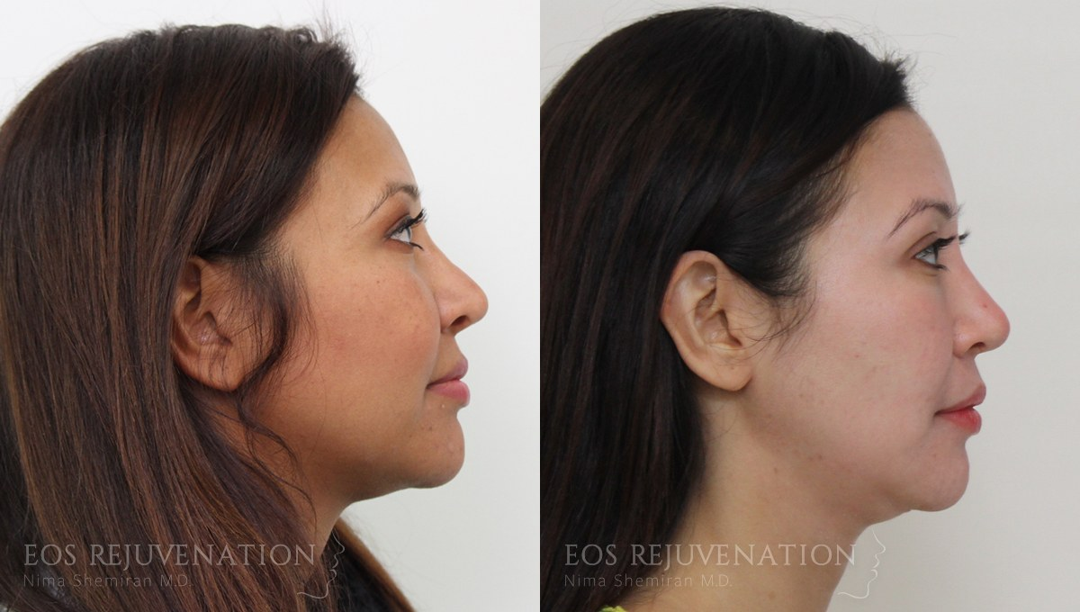 Patient 11a Revision Rhinoplasty Before and After