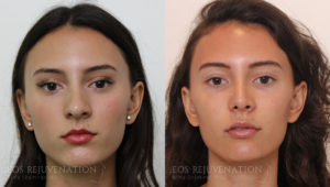 Patient 2d Rhinoplasty Before and After