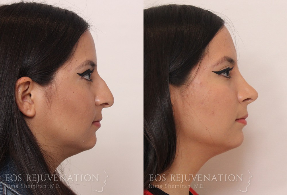 Patient 8a Rhinoplasty Before and After