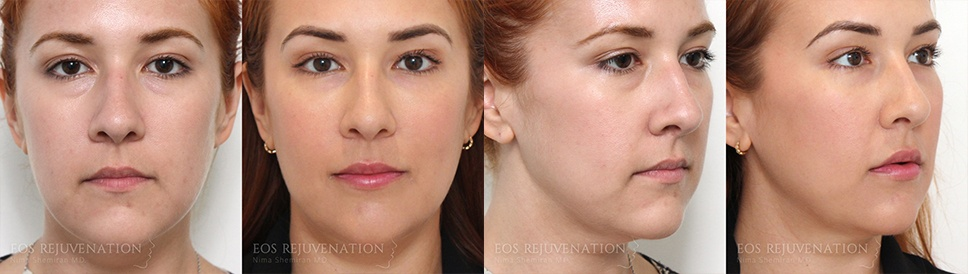 Cheek Augmentation Before and After Patient A