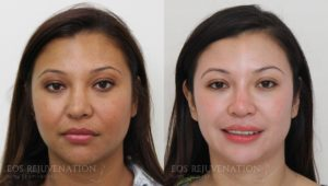 Patient 11b Revision Rhinoplasty Before and After