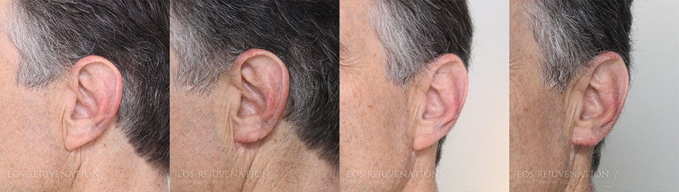 Earlobe Reduction Before and After Patient A