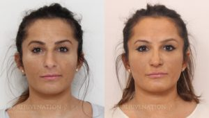 Patient 12c Rhinoplasty Before and After