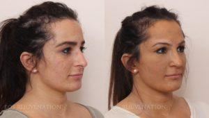 Patient 12b Rhinoplasty Before and After