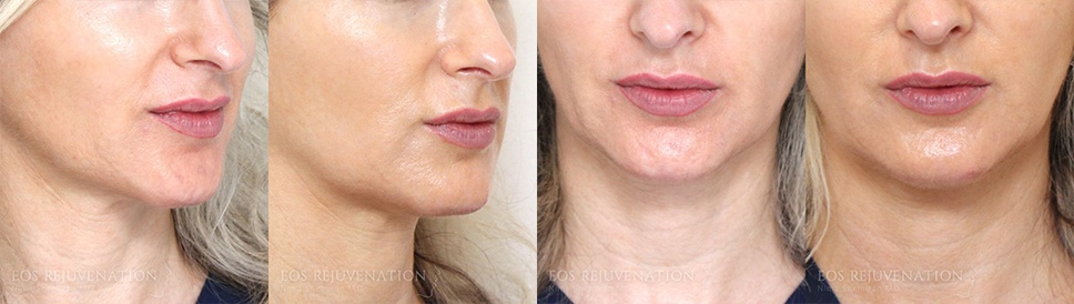 Microneedling Before and After Patient A