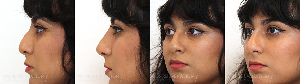 Nonsurgical Rhinoplasty Before and After Patient D