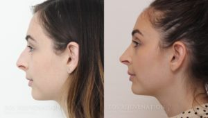 Patient 11a Rhinoplasty Before and After