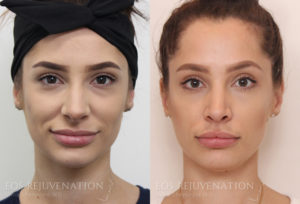 Patient 9c Rhinoplasty Before and After