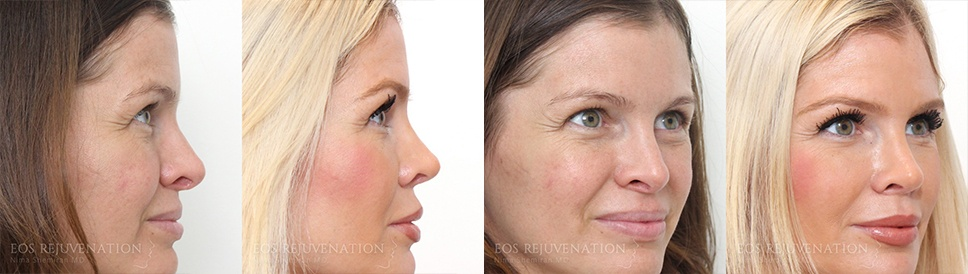 Nima Beverly Hills Revision Rhinoplasty Patient 2 Before and After Compilation