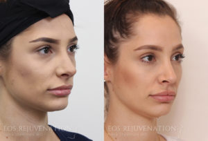 Patient 9b Rhinoplasty Before and After