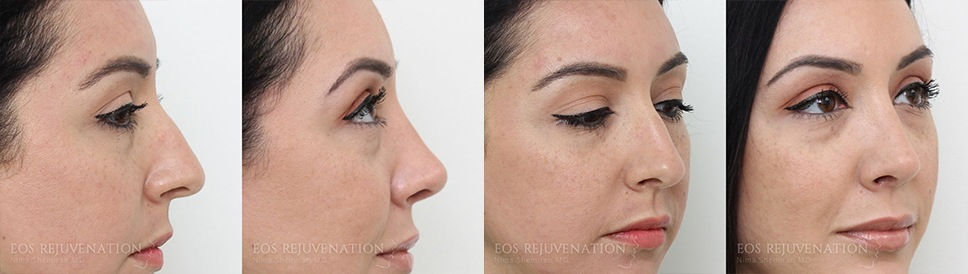 Rhinoplasty Before and After Patient A