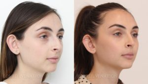 Patient 11b Rhinoplasty Before and After