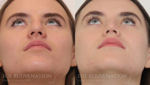 Patient 9d Revision Rhinoplasty Before and After