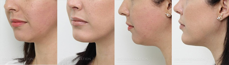 Liposuction Before and After Patient A
