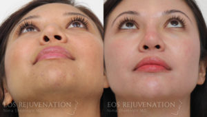 Patient 11c Revision Rhinoplasty Before and After