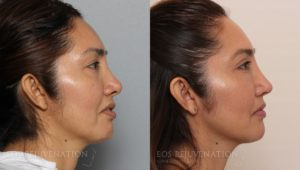Patient 1a Septoplasty Before and After