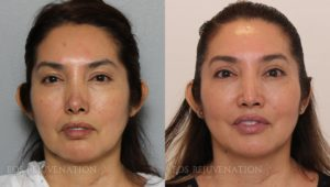 Patient 1c Septoplasty Before and After