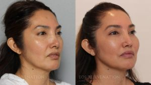 Patient 1b Septoplasty Before and After