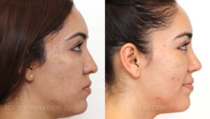 nima_Microneedling_beverlyhills_patient23a_Side
