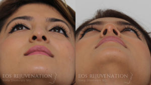 Patient 4d Revision Rhinoplasty Before and After