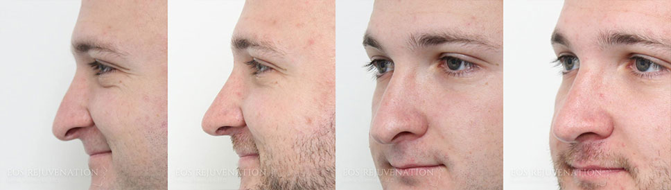 Male Rhinoplasty Before and After Patient A