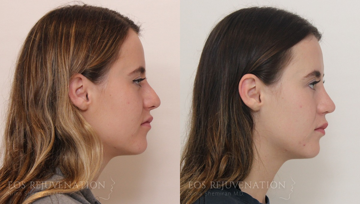 Patient 9a Revision Rhinoplasty Before and After
