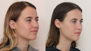 Patient 9b Revision Rhinoplasty Before and After