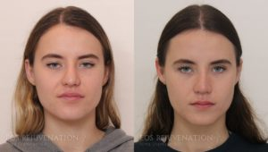 Patient 9c Revision Rhinoplasty Before and After