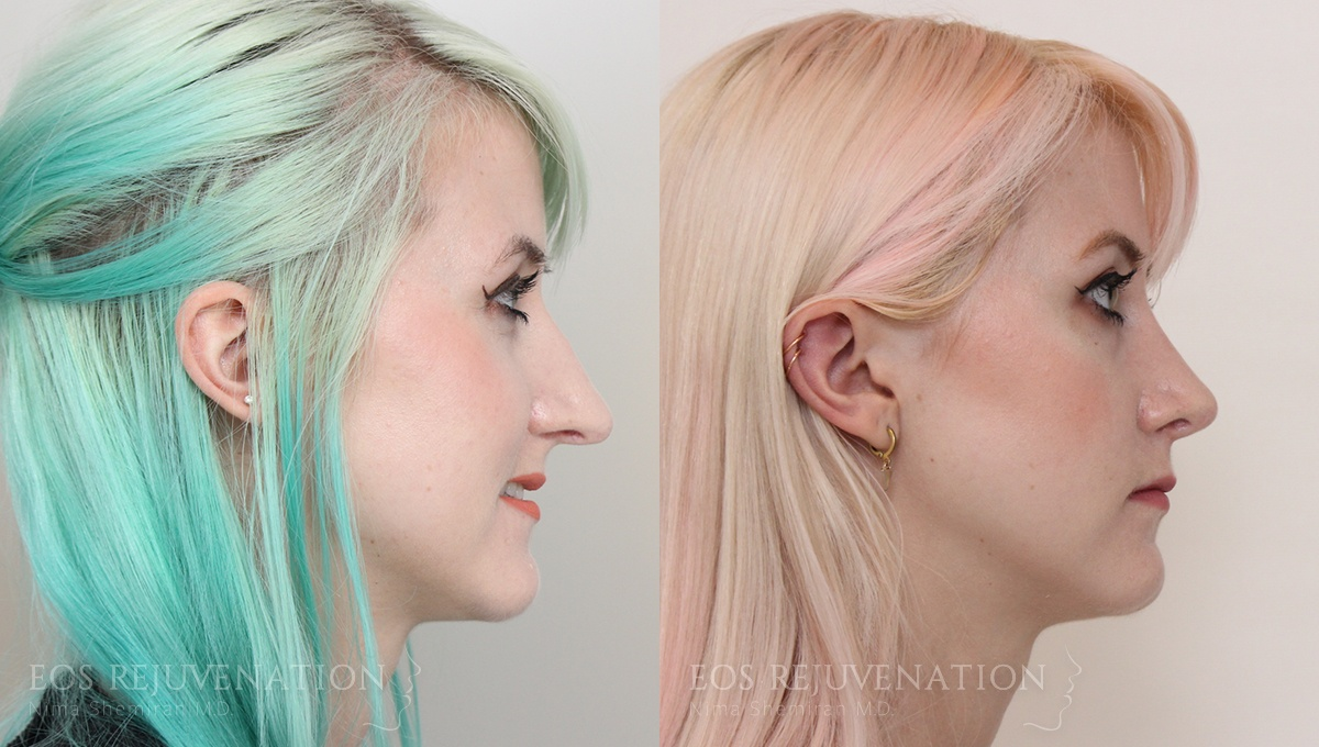 Patient 10a Revision Rhinoplasty Before and After