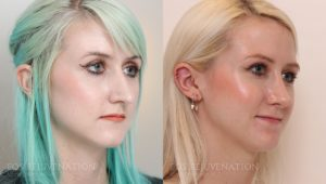 Patient 10b Revision Rhinoplasty Before and After