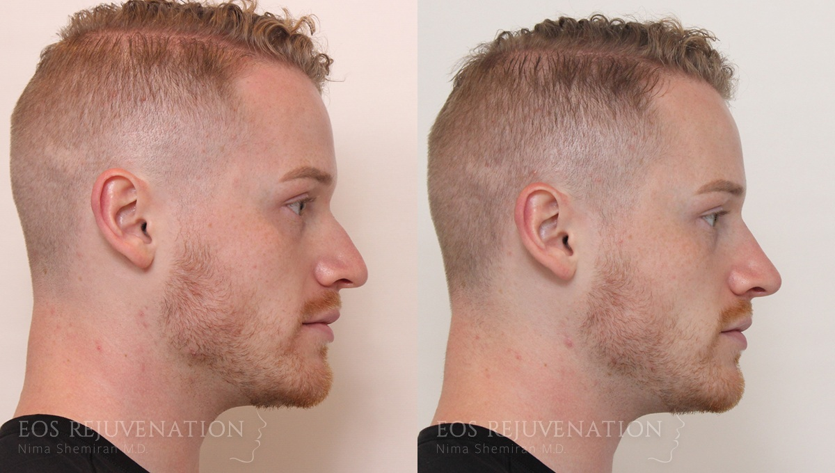 Patient 1a Nonsurgical Rhinoplasty Before and After