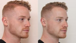 Patient 1b Nonsurgical Rhinoplasty Before and After