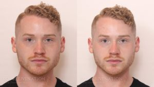 Patient 1c Nonsurgical Rhinoplasty Before and After
