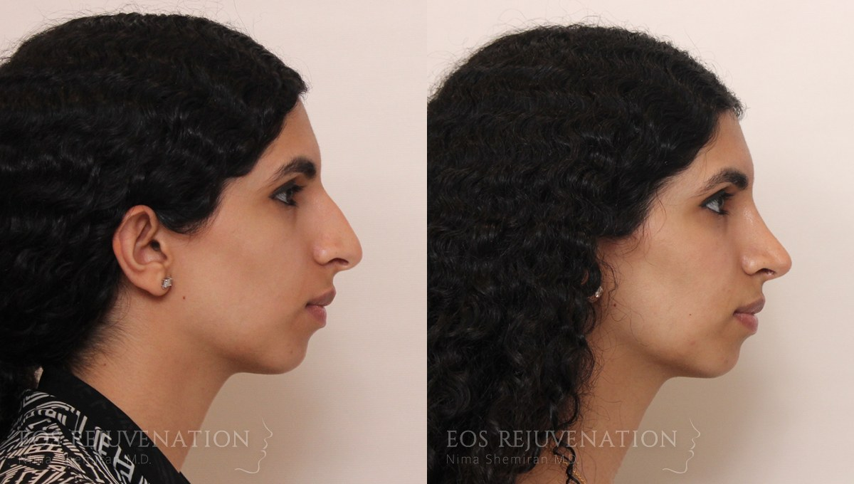 Patient 4a Rhinoplasty Before and After