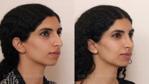 Patient 4b Rhinoplasty Before and After