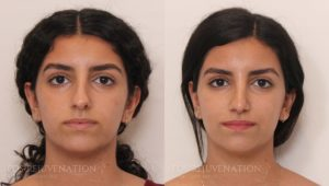Patient 3c Rhinoplasty Before and After