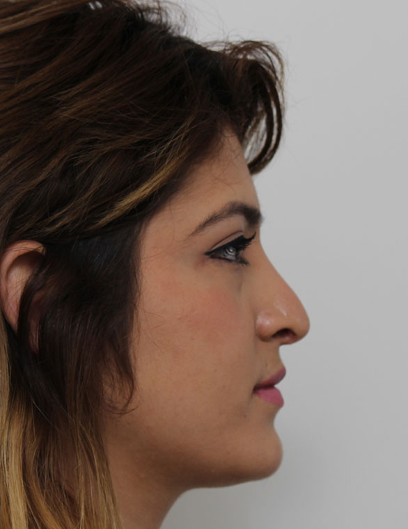 Front Page Before Rhinoplasty Patient