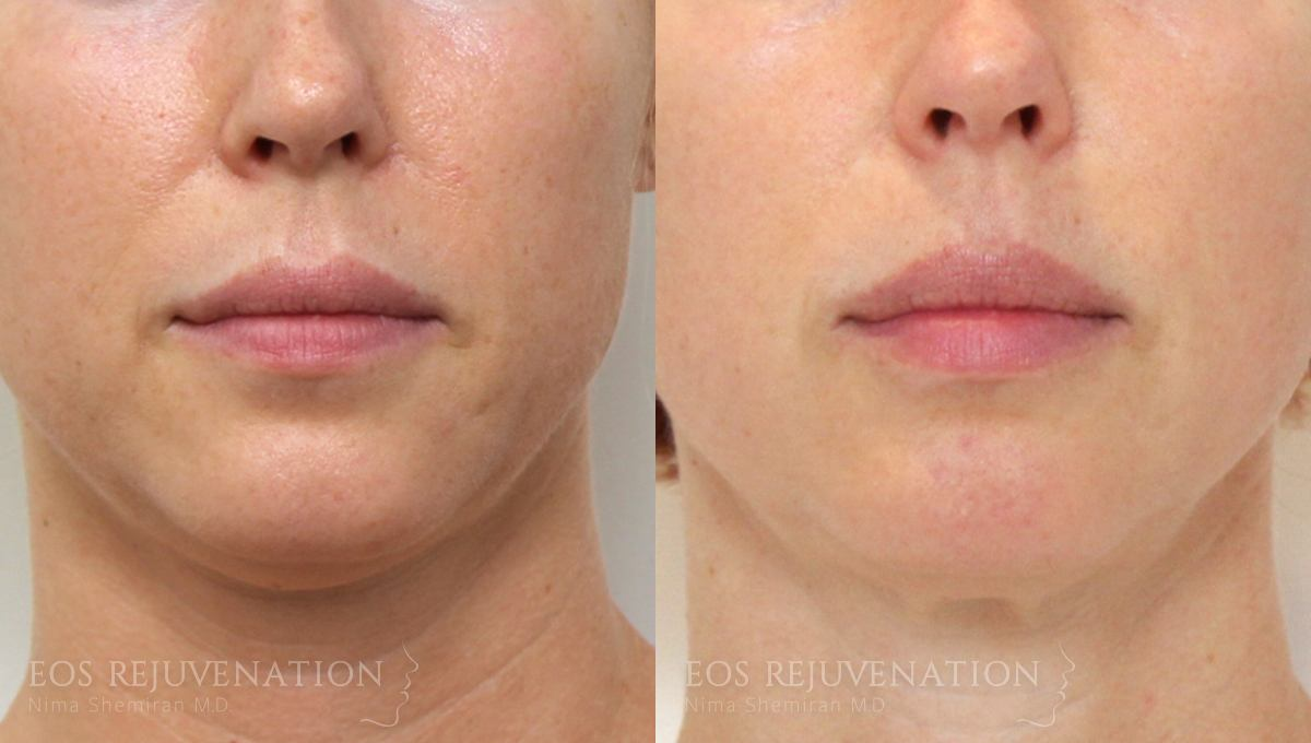 Patient 2a Fillers Before and After