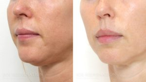 Patient 2b Fillers Before and After