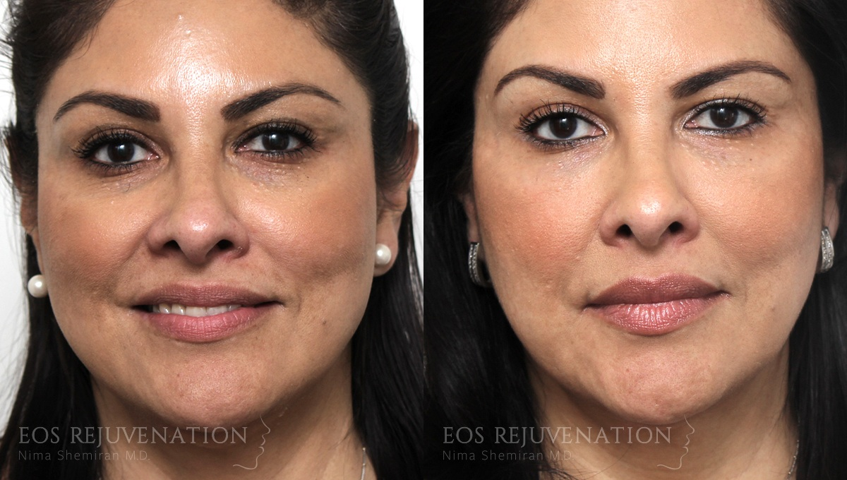 Patient 3a Fillers Before and After