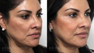 Patient 3b Fillers Before and After