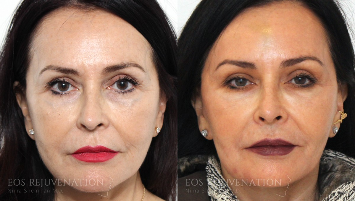 Patient 9a Fillers Before and After