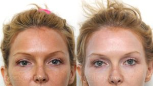 Filler Before and After Patient A1