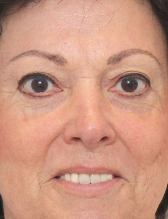 Blepharoplasty After Patient B