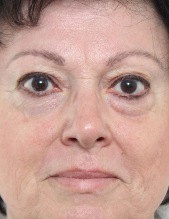 Blepharoplasty Before Patient B