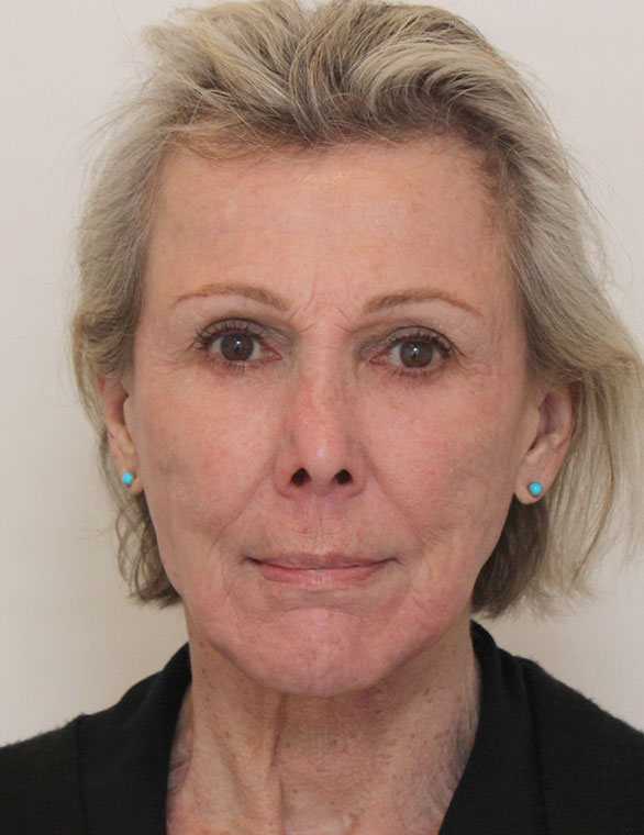 Facelift After Patient C