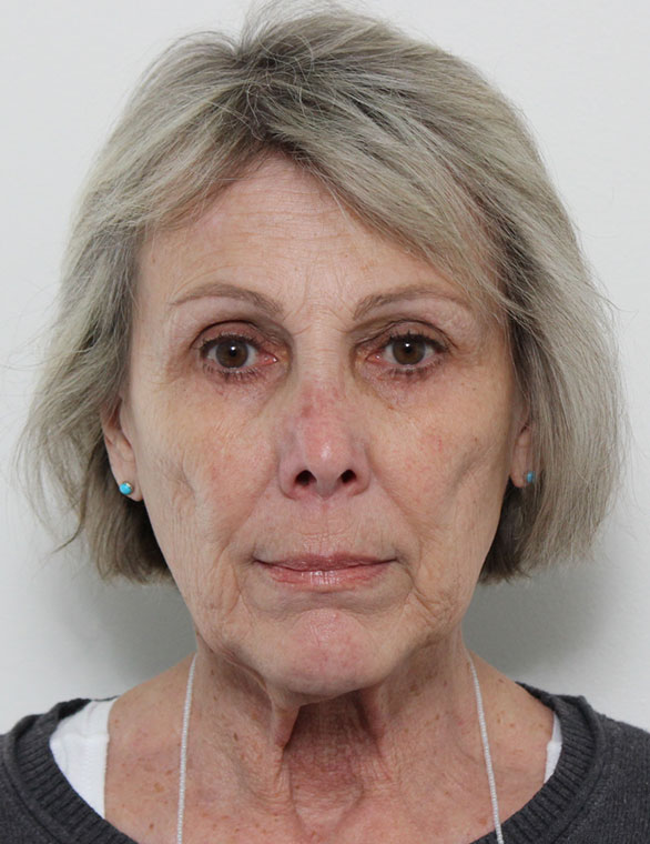 Facelift Before Patient C