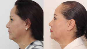 Patient 1c Liquid Face Lift Before and After