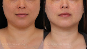 Patient 4a Buccal Fat Removal Before and After
